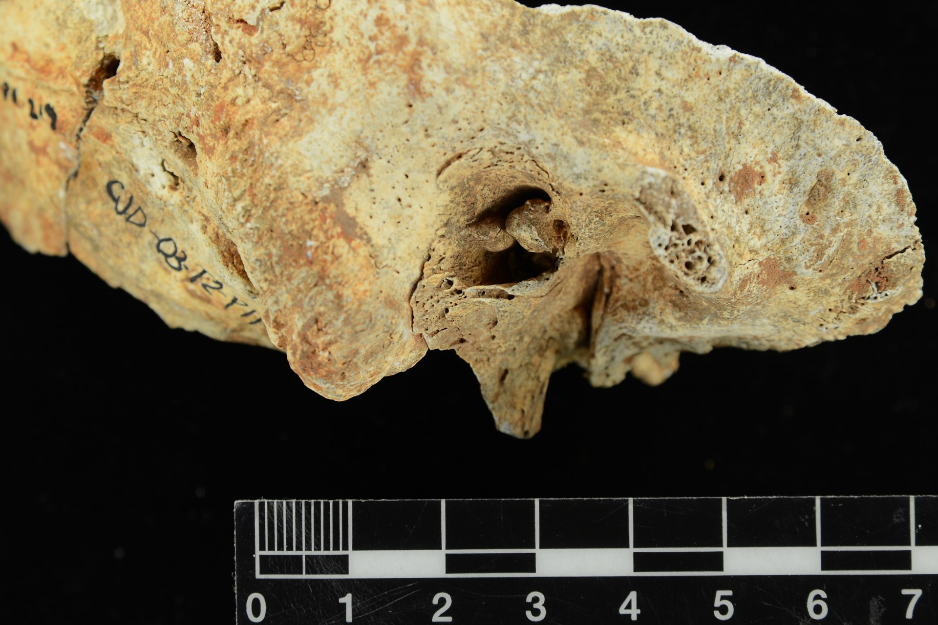 Surfer's Ear Points to Ancient Pearl Divers in Panama